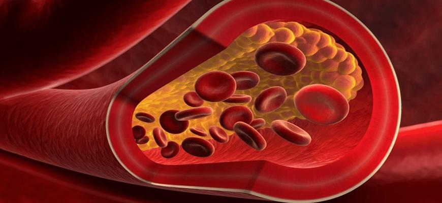 Можно ли при атеросклерозе