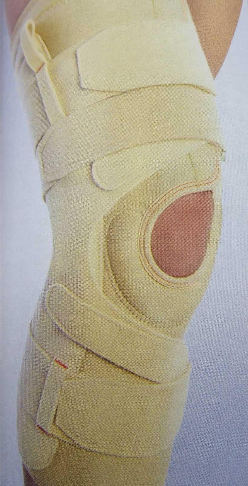 Лечение артроза коленного сустава. Начальные симптомы гонартроза