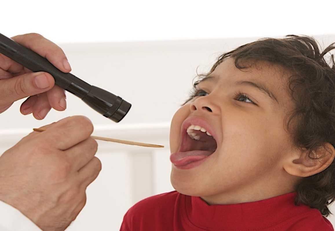 Чем лечить грипп у детей. Как начинается, симптомы