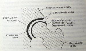 Как лечить коксартроз на любой стадии