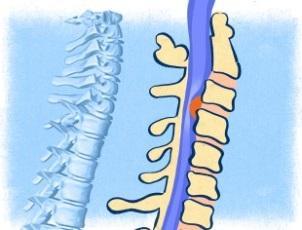 Лечение межпозвонковых грыж без операции