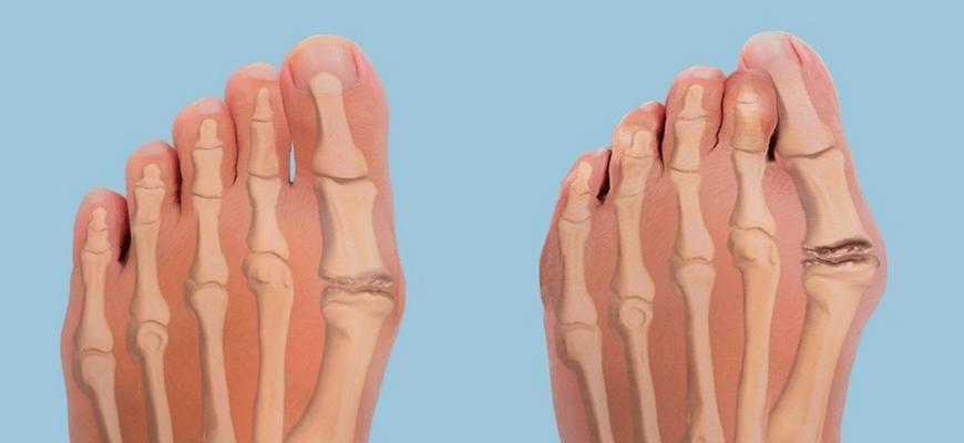 вальгусная шишка на ноге лечение