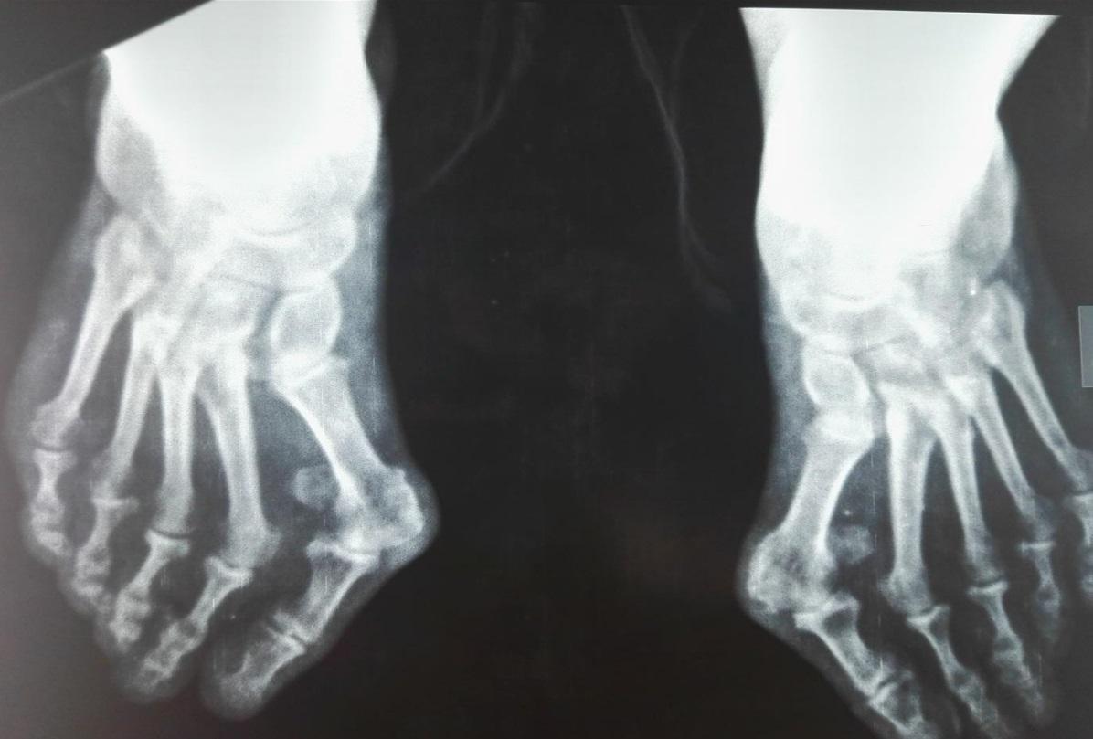 Лечение вальгусной деформации без операции. От чего появляются шишки на ногах