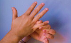 Отекают руки и ноги причина у женщин