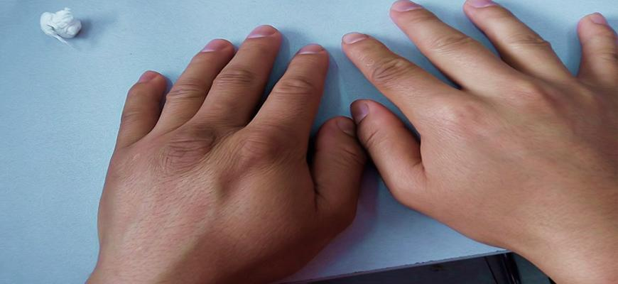 почему сильно отекают руки