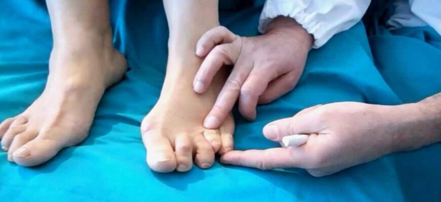 молоткообразный палец стопы